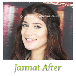 jannat after straight teeth braces