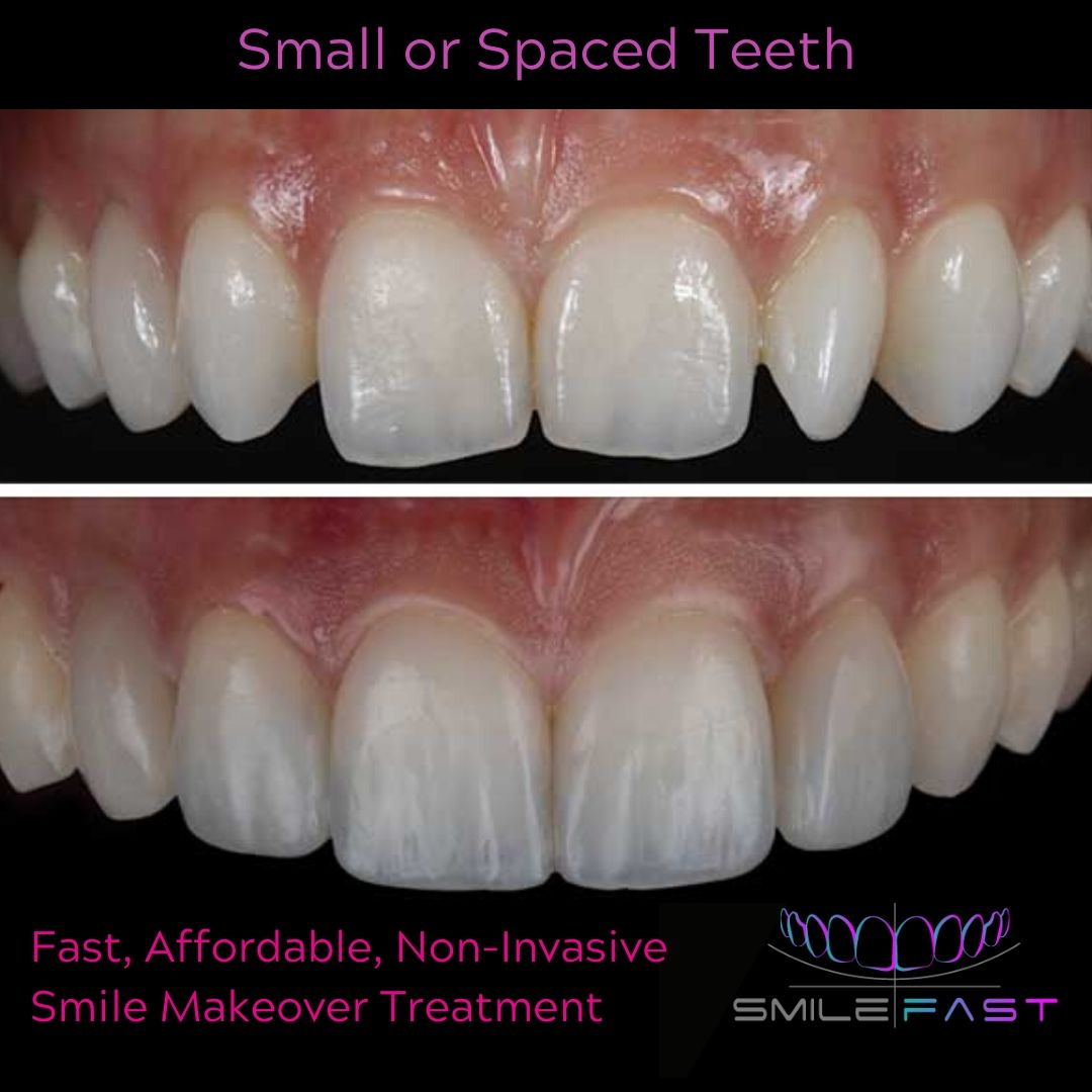 Small or spaced teeth