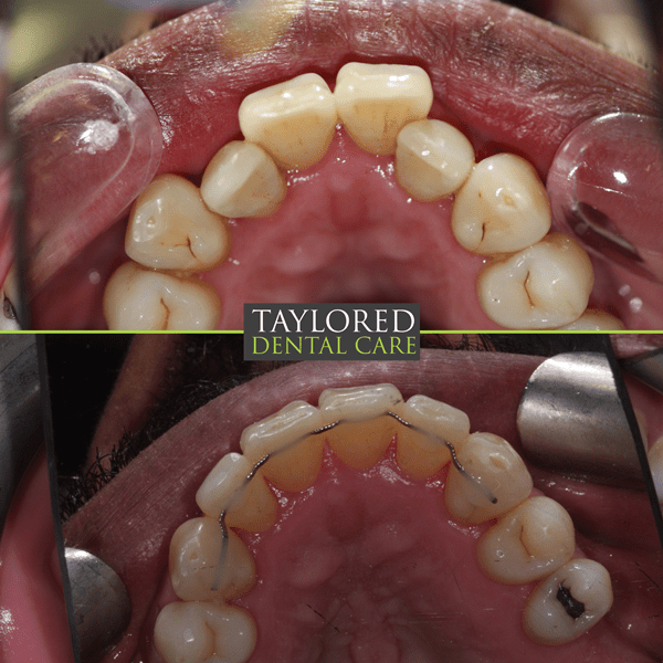 Changing Smiles At Taylored Dental